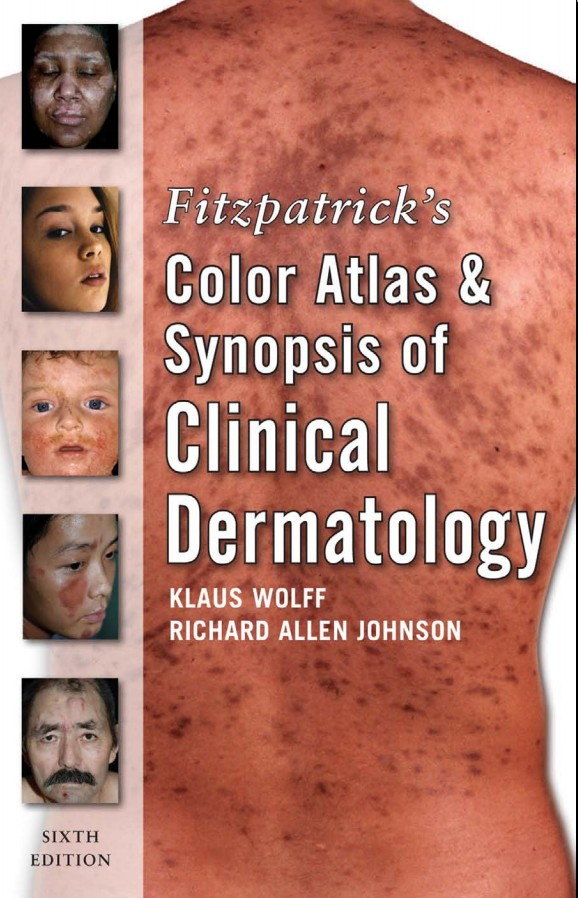 Fitzpatrick's Color Atlas &Aynopsis of Clinical Dermatology (Sixth edition)