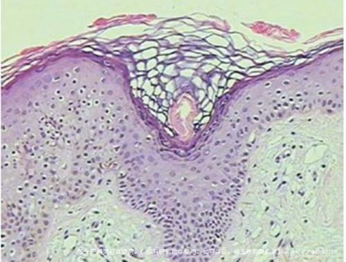 毛发苔藓 -组织病理
